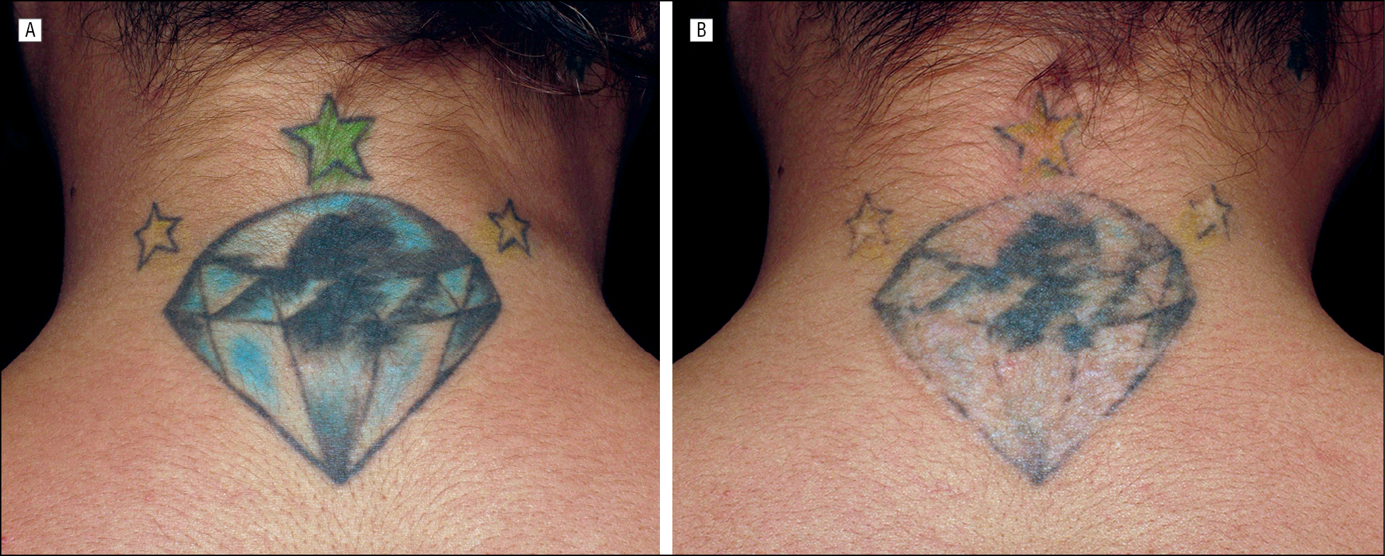 Successful And Rapid Treatment Of Blue And Green Tattoo Pigment With