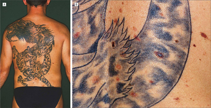 The Dragon With Atypical Mole Syndrome Dermatology Jama