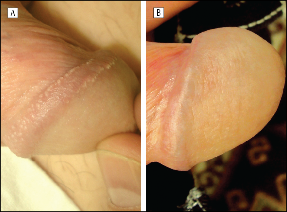 pearly penile papules laser treatment