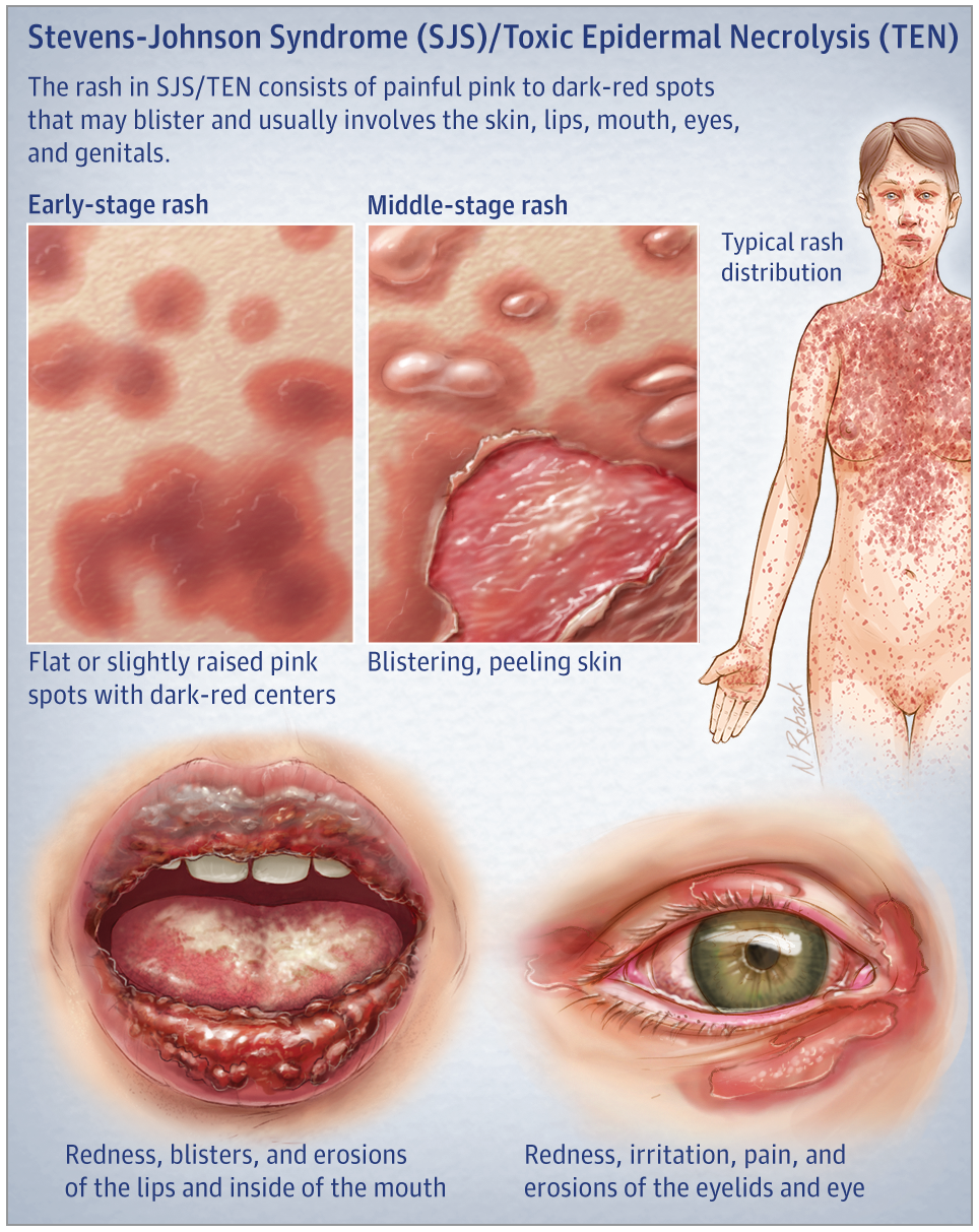 Stevens Johnson Syndrome And Toxic Epidermal Necrolysis