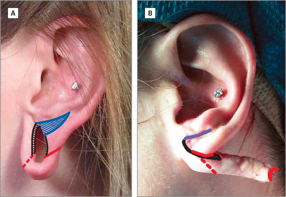 Reconstructing The Gauge Earlobe Defect Dermatology Jama Facial