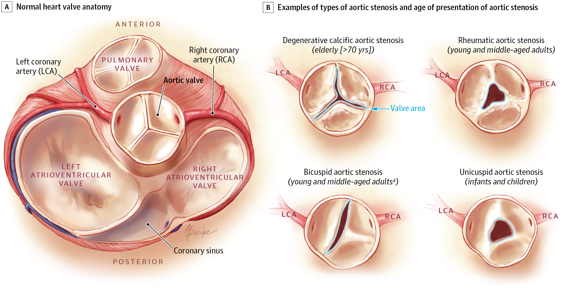 Asymptomatic Aortic Stenosis In The Elderly A Clinical Review