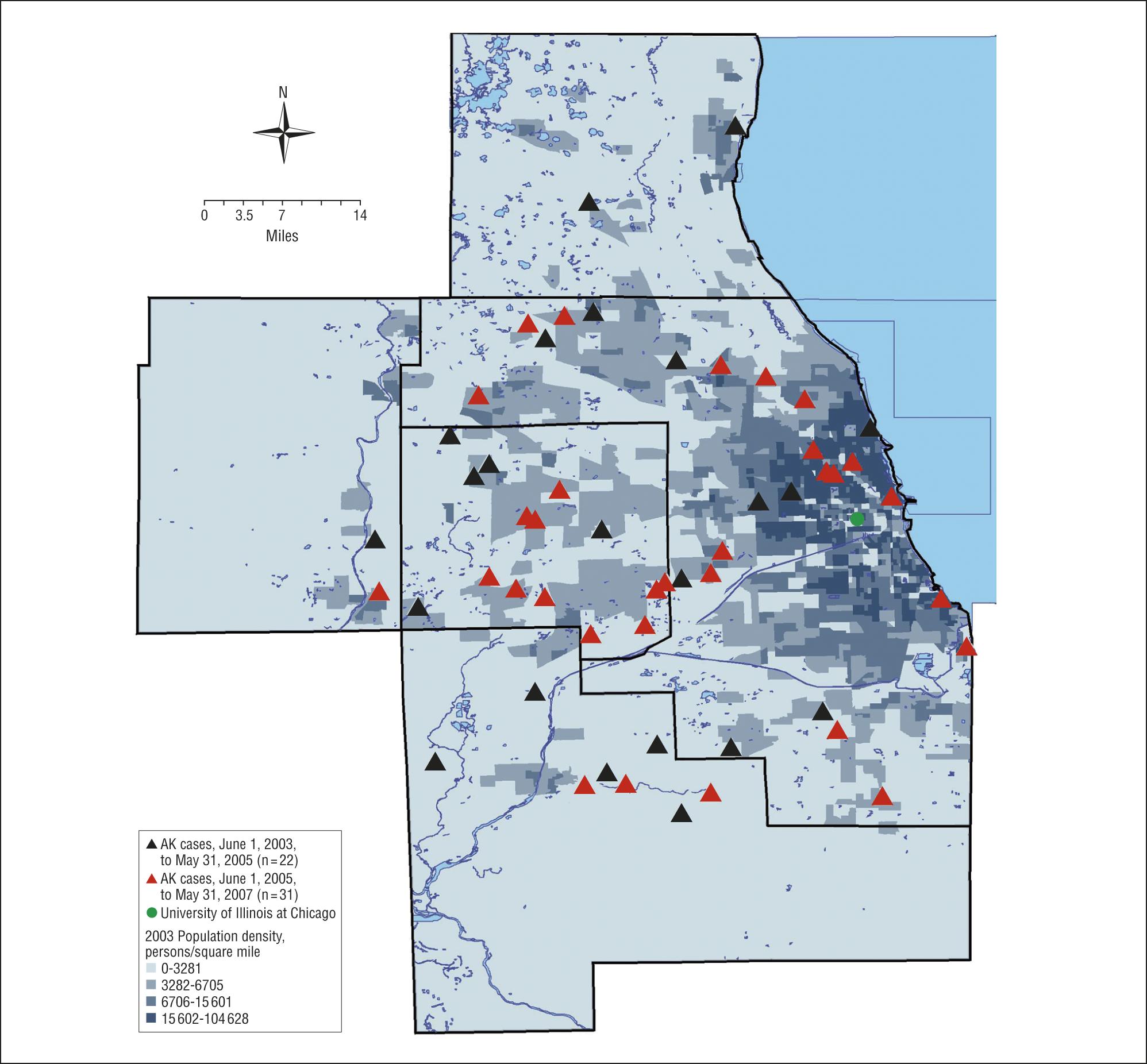 Shifting Distribution of Chicago-Area Acanthamoeba Keratitis Cases ...