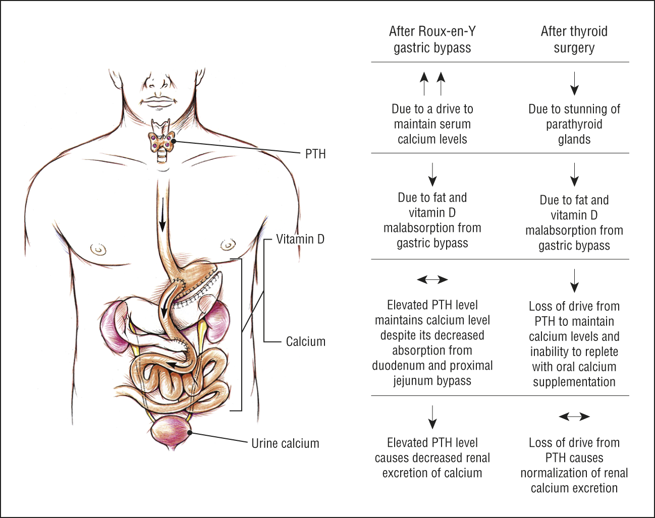 Severe Hypocalcemia Complicating Thyroid Surgery After Roux En Y