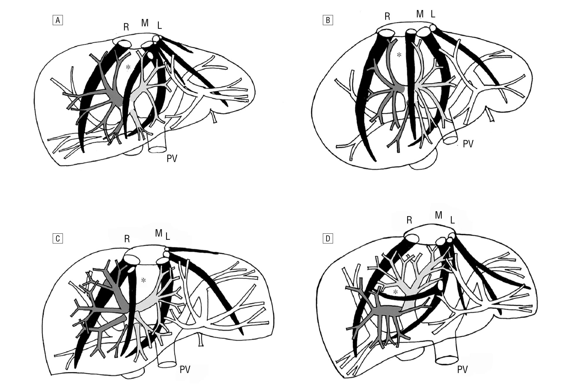 Reproposal For Hjortsjos Segmental Anatomy On The Anterior Segment